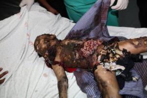 Juutalaisvaltion terrorismin uhri.